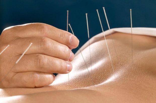 acupunctura-tine-departe-medicamentele-552444